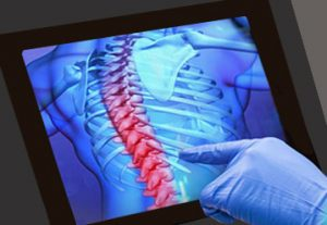 Medical Display showing spine highlighted on x-ray image